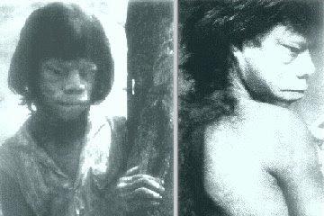 MULHER ESTRANHA ENCONTRADA COM CRINAS DE CAVALOS NAS COSTAS EM 1970 EM MINAS GERAIS