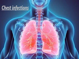 Chest infections- Chronic cough -symptoms-causes-Home Remedies