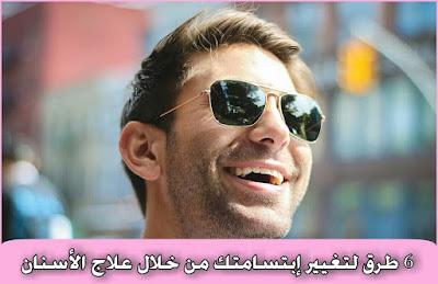 6 طرق لتغيير إبتسامتك  من خلال علاج الأسنان