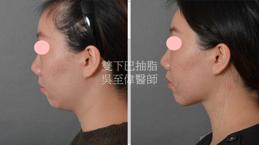 2021年三月最新案例,雙下巴抽脂,在脂肪問題較明顯的下臉部,適合的手術方式不只有拉皮,亦可考慮單純以抽脂達到雕塑的效果,拉皮手術推薦