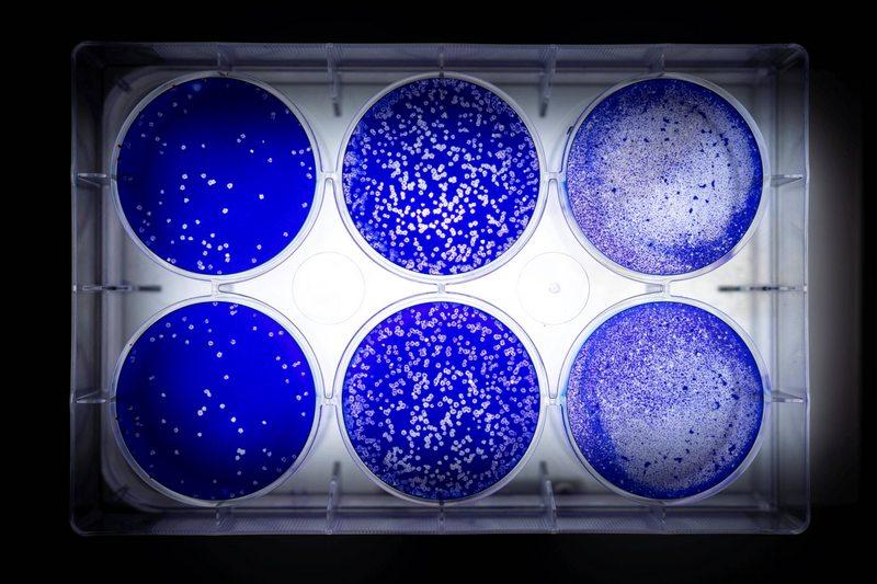 Científicos arman el árbol genealógico del coronavirus en Chile