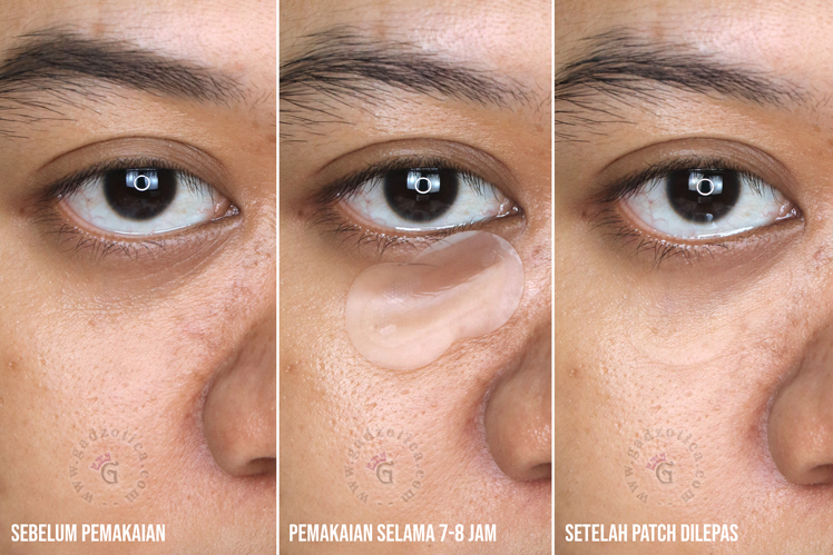 Hasil Pemakaian Endoskin Overnight Beauty Patch