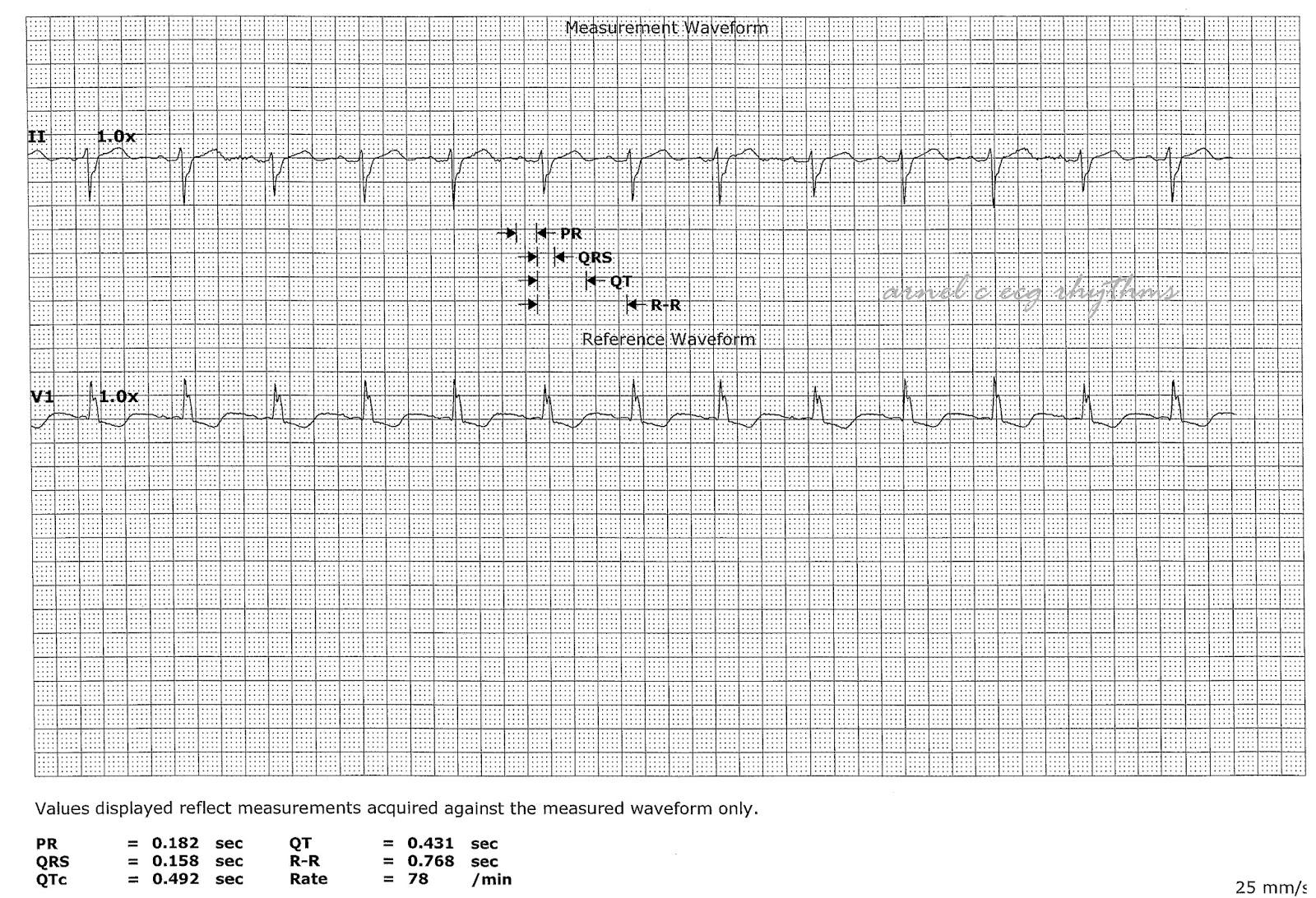 ECG Rhythms: Measurement Practice
