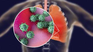 Penyebaran virus corona mirip dengan penyebatan flu, menurut WHO