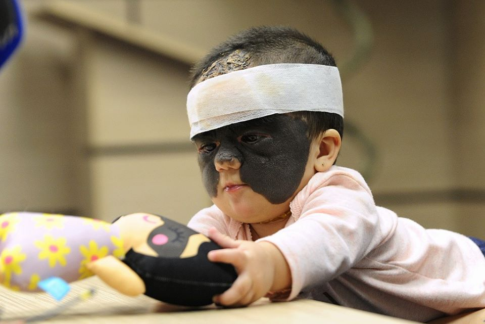 "Baby Left With ""Batman Mask Look"" After Treatment In Clinic"