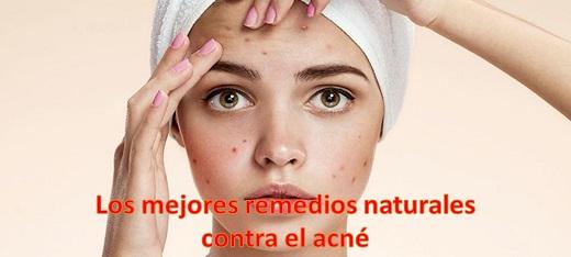 remedios caseros contra el acné