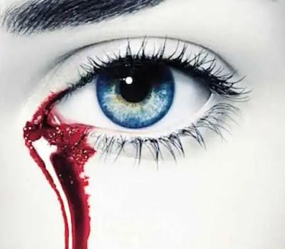 تفسير حلم خروج الدم من العين لابن سيرين