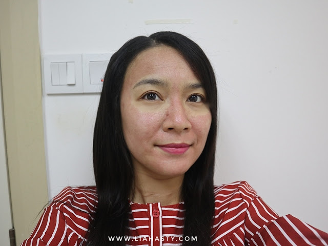 Rawatan Brightening & Open Pore di Klinik Pakar Dr Ko Juru
