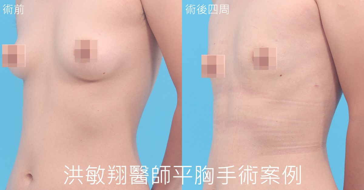 乳暈平胸手術案例45度