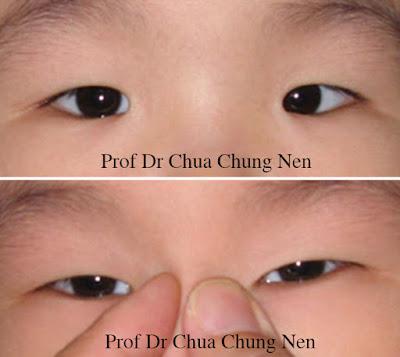 Eyelid Surgery by Prof Dr CN CHUA 蔡鐘能: February 2016