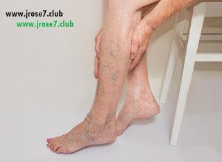 اسباب الدوالي,علاج الدوالي,ما هو سبب الدوالي,اسباب الدوالي في الساقين, عروق الدوالي,دوالي الأرجل