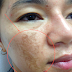 Melasma - enemy number 1 for women