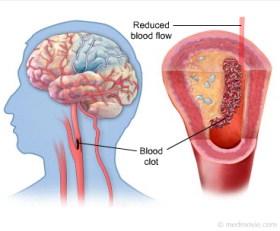 Cara menyembuhkan stroke iskemik