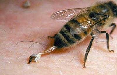 العلاج بسم النحل