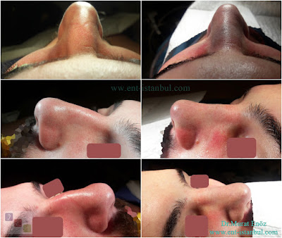 Rhinoplasty Operation in Men Istanbul