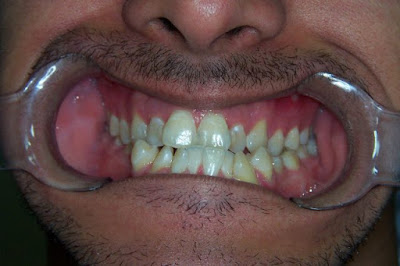 The malocclusion