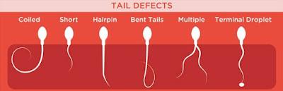 Tail defect morfologi sperma abnormal