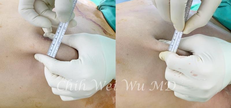 男性女乳手術抽脂與乳腺切除立即效果,左為術前,右為立即術後