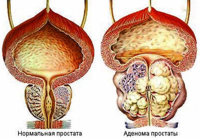 Аденома предстательной железы симптомы и лечение медикаментозное