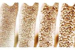 Obat Tulang Keropos Herbal - Membantu Mencegah Dan Mengatasi Pengeroposan Tulang Secara Alami