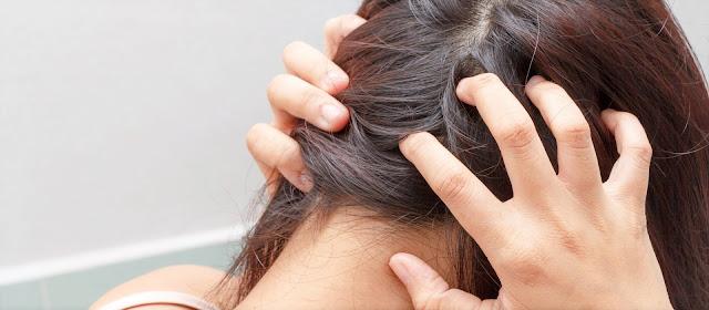 Conseils pour soulager les douleurs du cuir chevelu