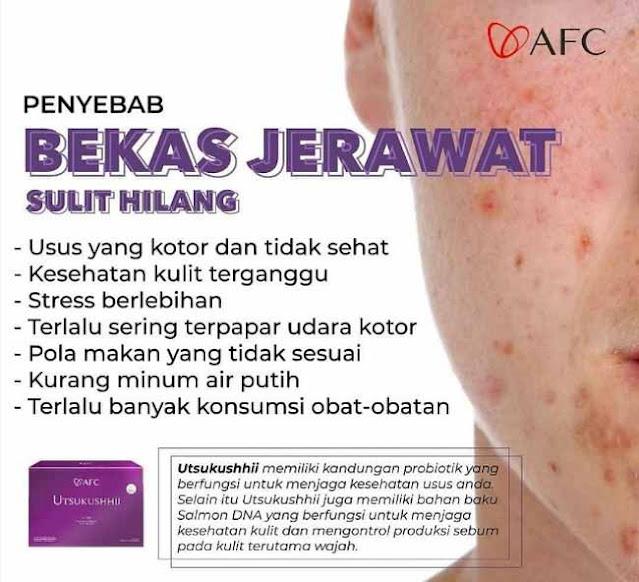 Jual AFC SOP Subarashii Review - Obat Tradisional Penyakit Gula, Info di Musi Rawas Utara. SOP 100+ Review.
