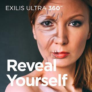 Exilis Ultra 360 2 shy pte ltd