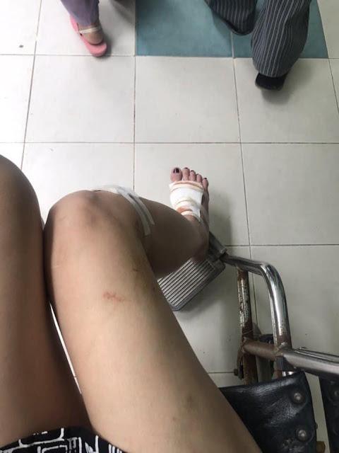 Người mẫu Cao Thùy Linh từng bị sàm sỡ khi đang chờ đèn đỏ 3 năm trước