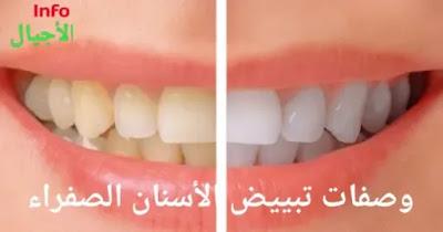 تبييض الأسنان الصفراء