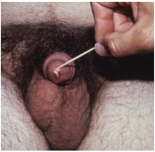 Gejala  terinfeksi Neisseria gonorrhoeae