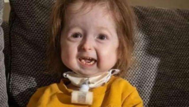 Bebê é única no mundo a possuir doença de Benjamin Button