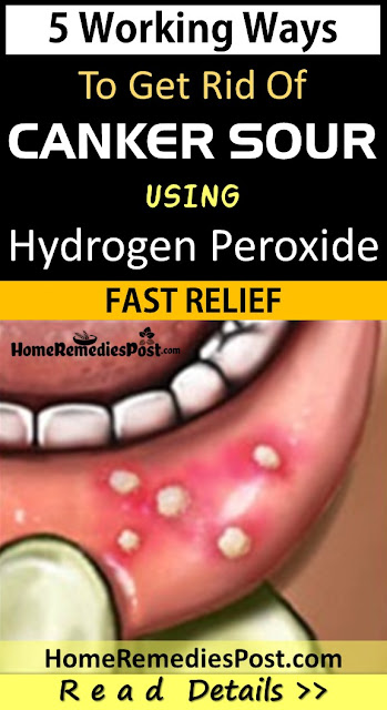 Hydrogen Peroxide For Canker Sores, Hydrogen Peroxide Canker Sores, Is Hydrogen Peroxide Good For Canker Sores, Hydrogen Peroxide And Canker Sores, How To Get Rid Of Canker Sore, Canker Sore Remedy, Canker Sore Treatment, How To Treat Canker Sore, Home Remedies For Canker Sore, Canker Sore Home Remedies, How To Cure Canker Sore, Treatment For Canker Sore,
