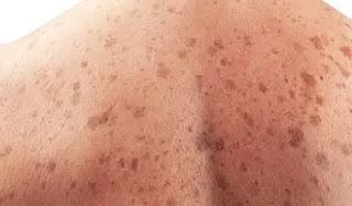 spread of skin cancer_ichhori