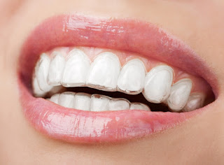 http://smiledesigning.in/invisible-teeth-braces-kerala.html
