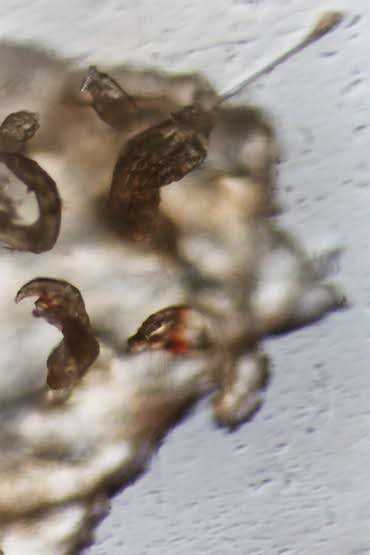 Morgellons Relief: July 2011
