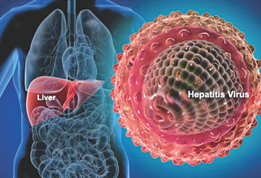 Ciri-Ciri Penyakit Hepatitis dan Penyebabnya