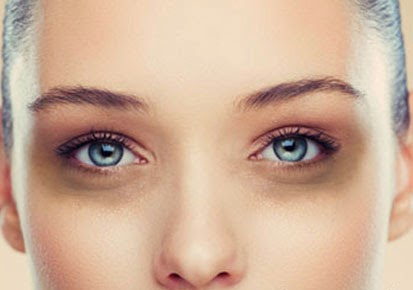 http://www.funmag.org/health-and-beauty-tips/treatment-for-dark-circles/