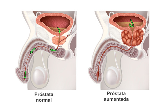 la próstata que produce líquido o