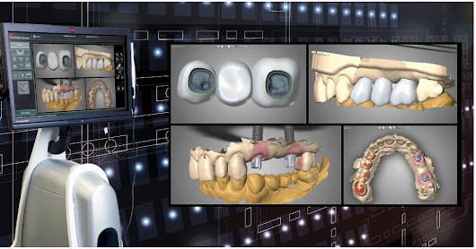 Intraoral Scanning of Implants