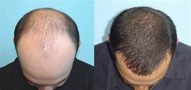 Hair transplantation cost and everything you need to know
