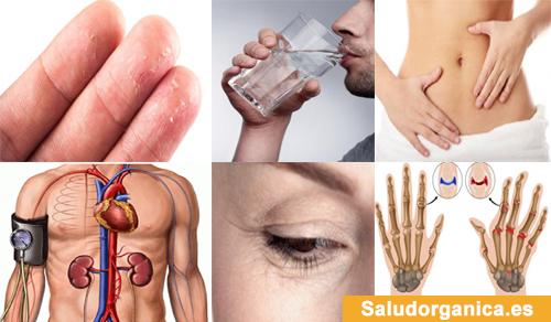 13 trastornos que suceden en su cuerpo por no beber suficiente agua al día