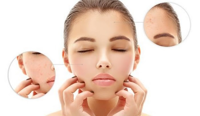 Top 10 Home Remedies For Open Pores