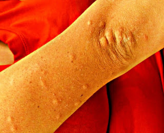 Herpes, Scabies And Itching Home Treatment, Causes