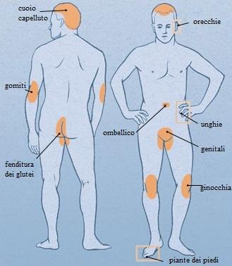 Medicina di psoriasi su risposte del corpo