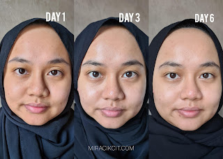Results Using FOREO UFO Before & After
