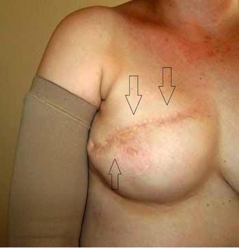 tratamiento cicatriz cesarea fisioterapia