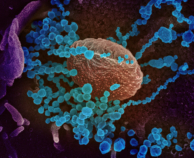 World Health Organization warning due to coronavirus (Covid-19)