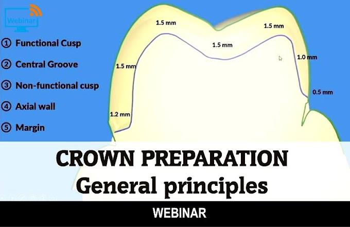CROWN PREPARATION: General principles