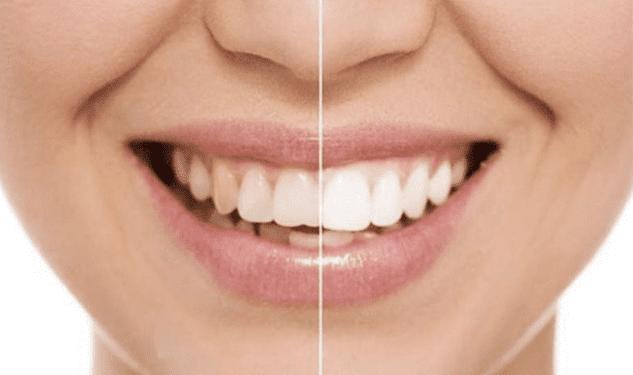 7 طرق فعالة لجعل الأسنان بيضاء ولامعة