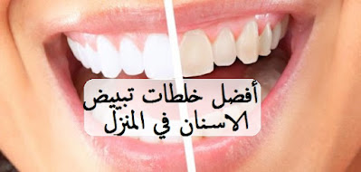 أفضل خلطات تبييض الاسنان